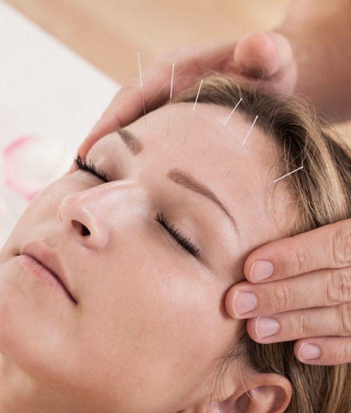 acupuncture-petal